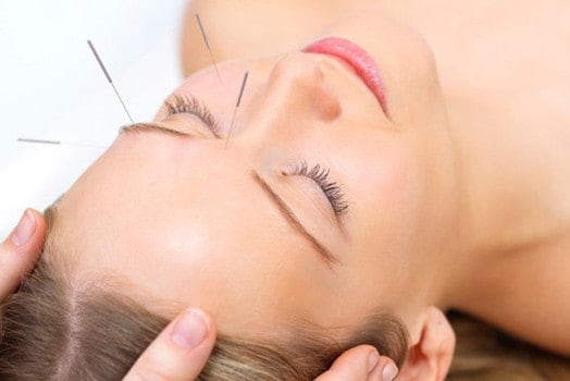Four Benefits of Cosmetic Acupuncture